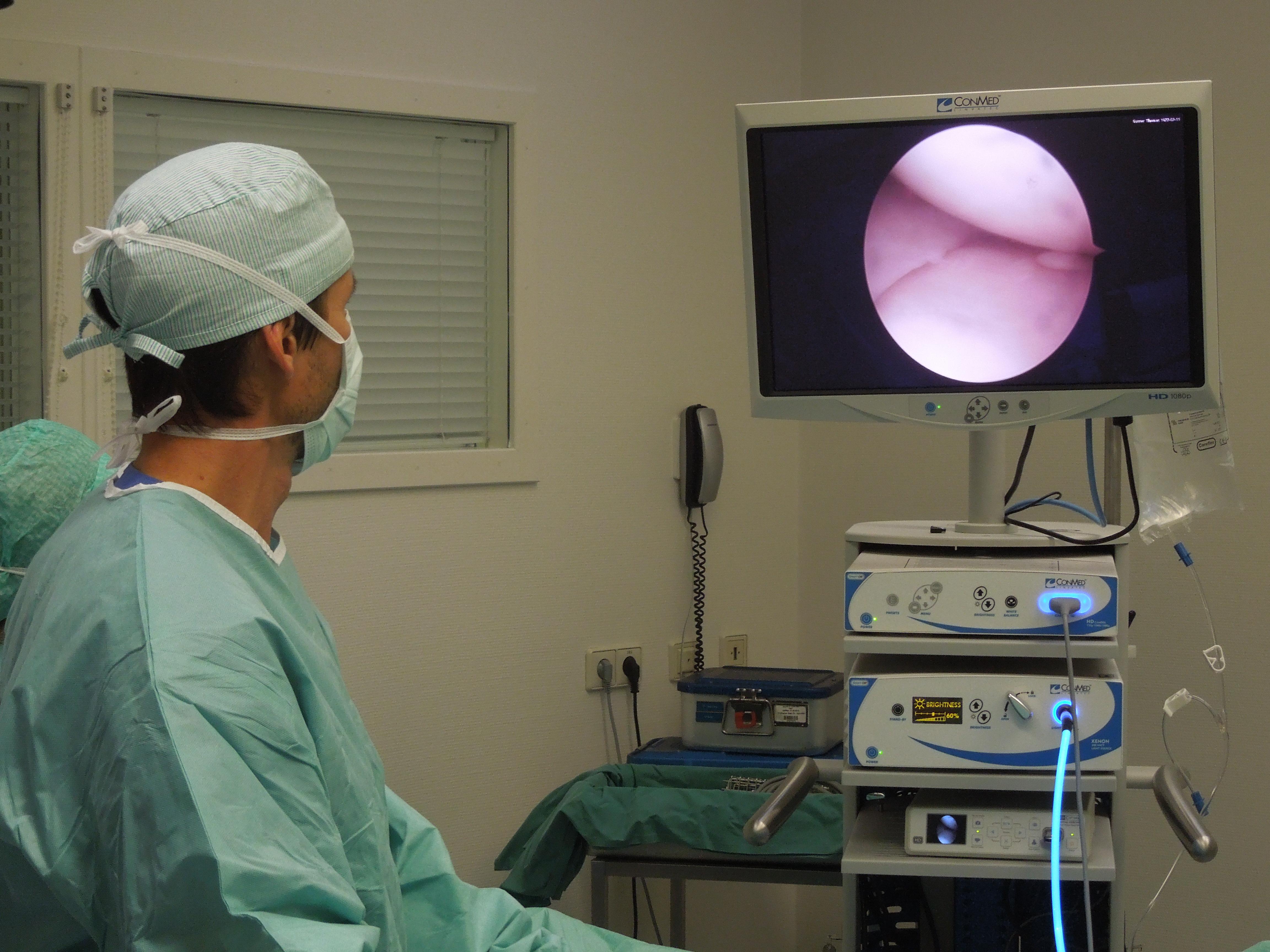 Dr. Schmidt nimmt eine Arthroskopie vor. Der Bildschirm erlaubt einen Einblick in das Kniegelenk des Patienten.